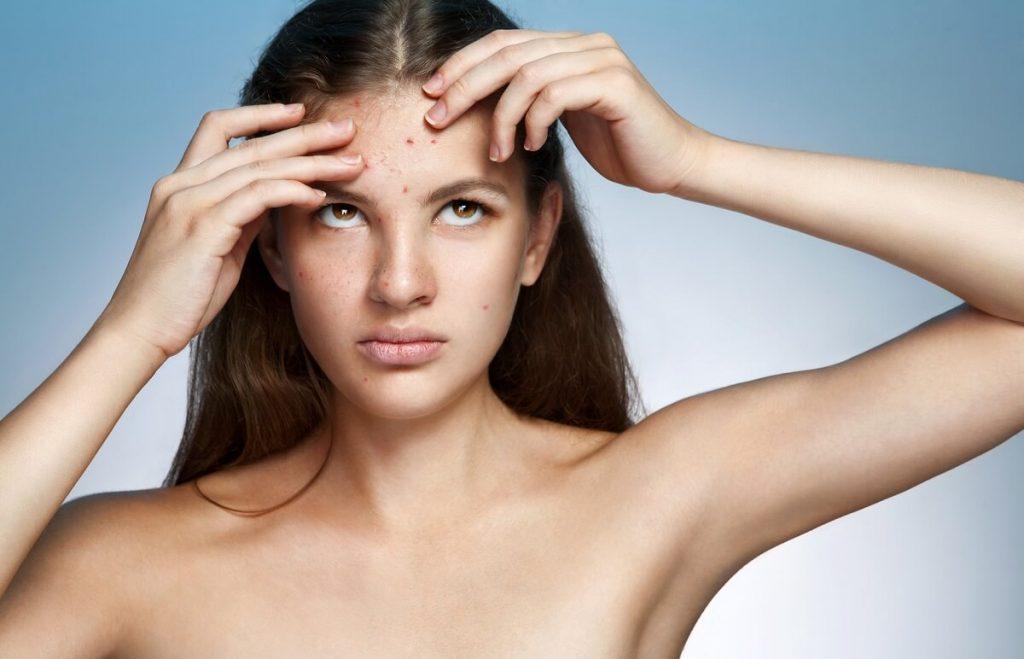 kobieta potrzebuje psychoterapii ma problem ze skórą
